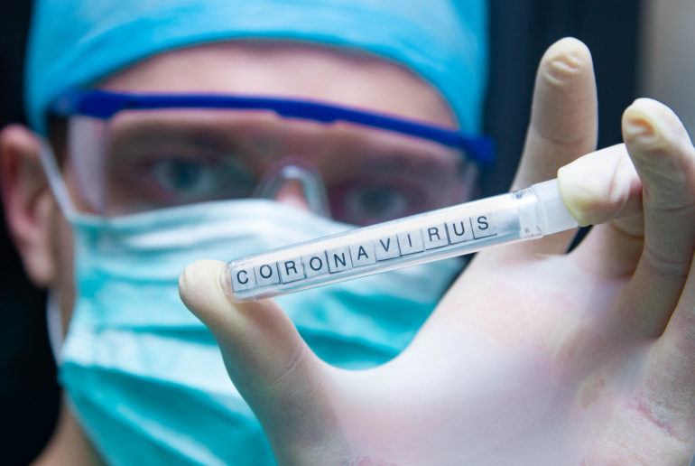 A scientist holds in his hand a test tube with the virus coronavirus.